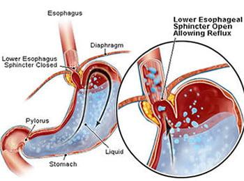 Картинки по запросу недостаточность кардии желудка