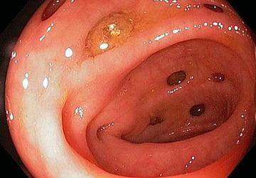 фото дивертикулез кишечника